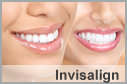 Invisalign Valley Stream 11580